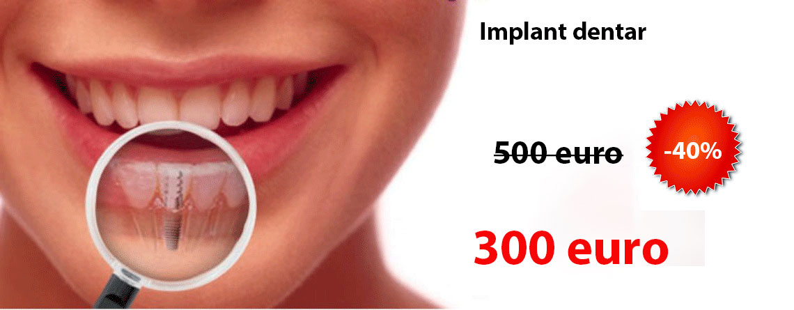 Implant dentar Alpha Bio pret 250 euro